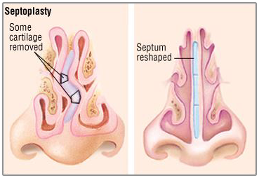 post nasal drip steroid treatment