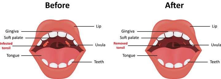 Tonsillectomy by BergerHenry ENT Philadelphia