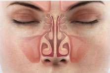 Featured ENT Topic - Allergic Rhinitis