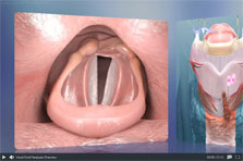 ENT Topic of the Month - Vocal Cord Paralysis