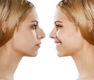 Young Woman - Before and After Cosmetic Rhinoplasty