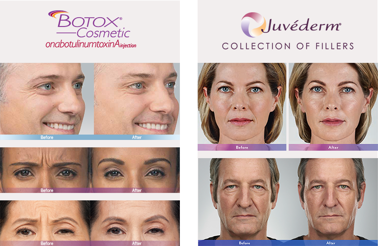 BOTOX® Cosmetic injection and JUVÉDERM® injectable dermal gel filler treatments Philadelphia
