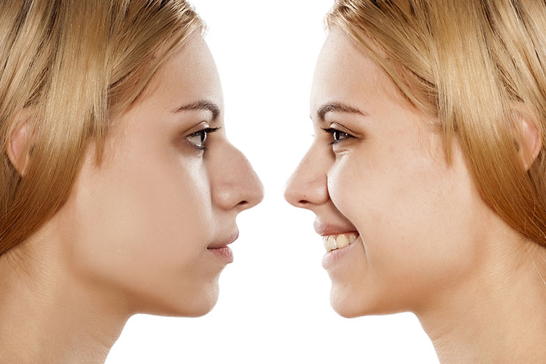 Cosmetic Rhinoplasty Philadelphia
