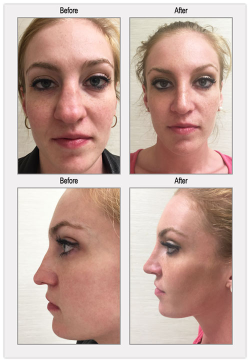 Cosmetic Rhinoplasty Philadelphia Before and After Images