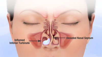my nasal passages are swollen - 400×225