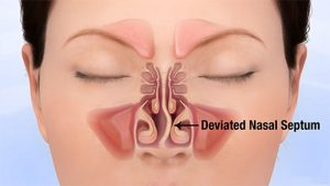Illustration of a deviated septum