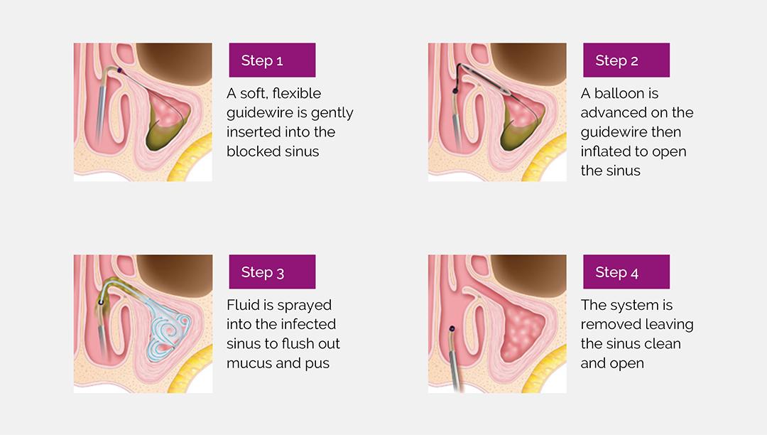 Explanation of Balloon Sinuplasty Procedure