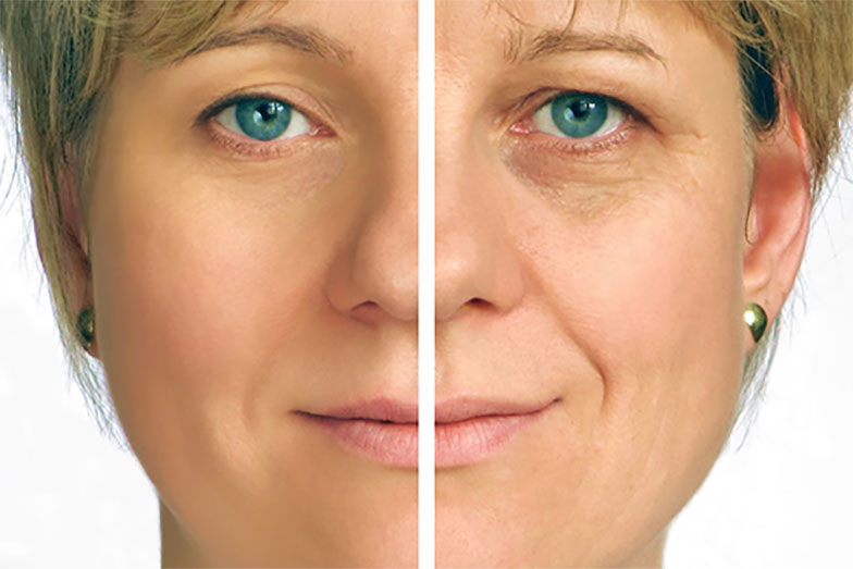 Non-Surgical Facial Rejuvenation Philadelphia