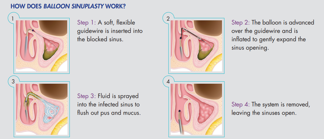 How does balloon sinuplasty work?