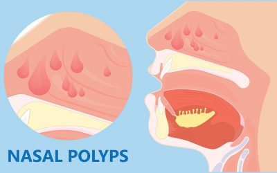 Do You Suffer from Chronic Sinusitis? You May Have Nasal Polyps