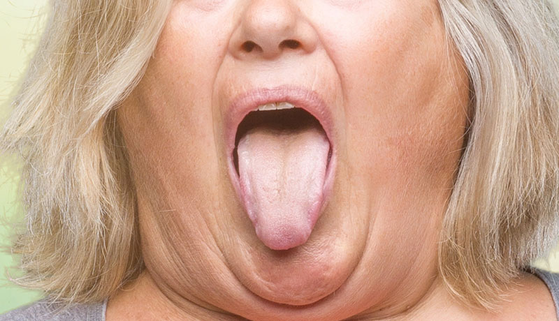 Reducing Tongue Fat Can Improve Your Sleep Apnea