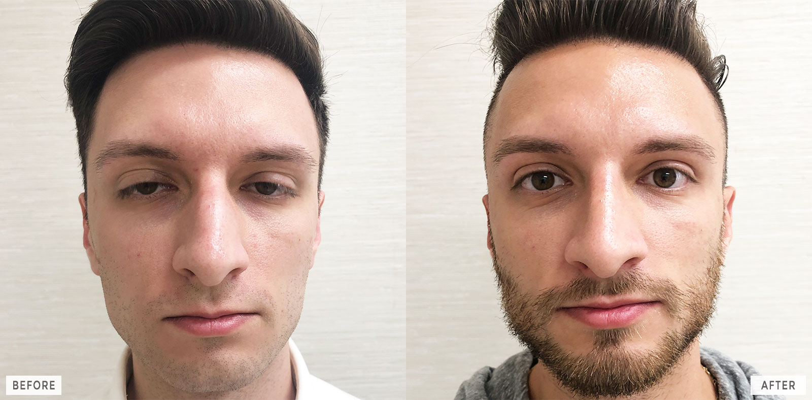 philadelphia-cosmetic-rhinoplasty-facelift-before-after_11a