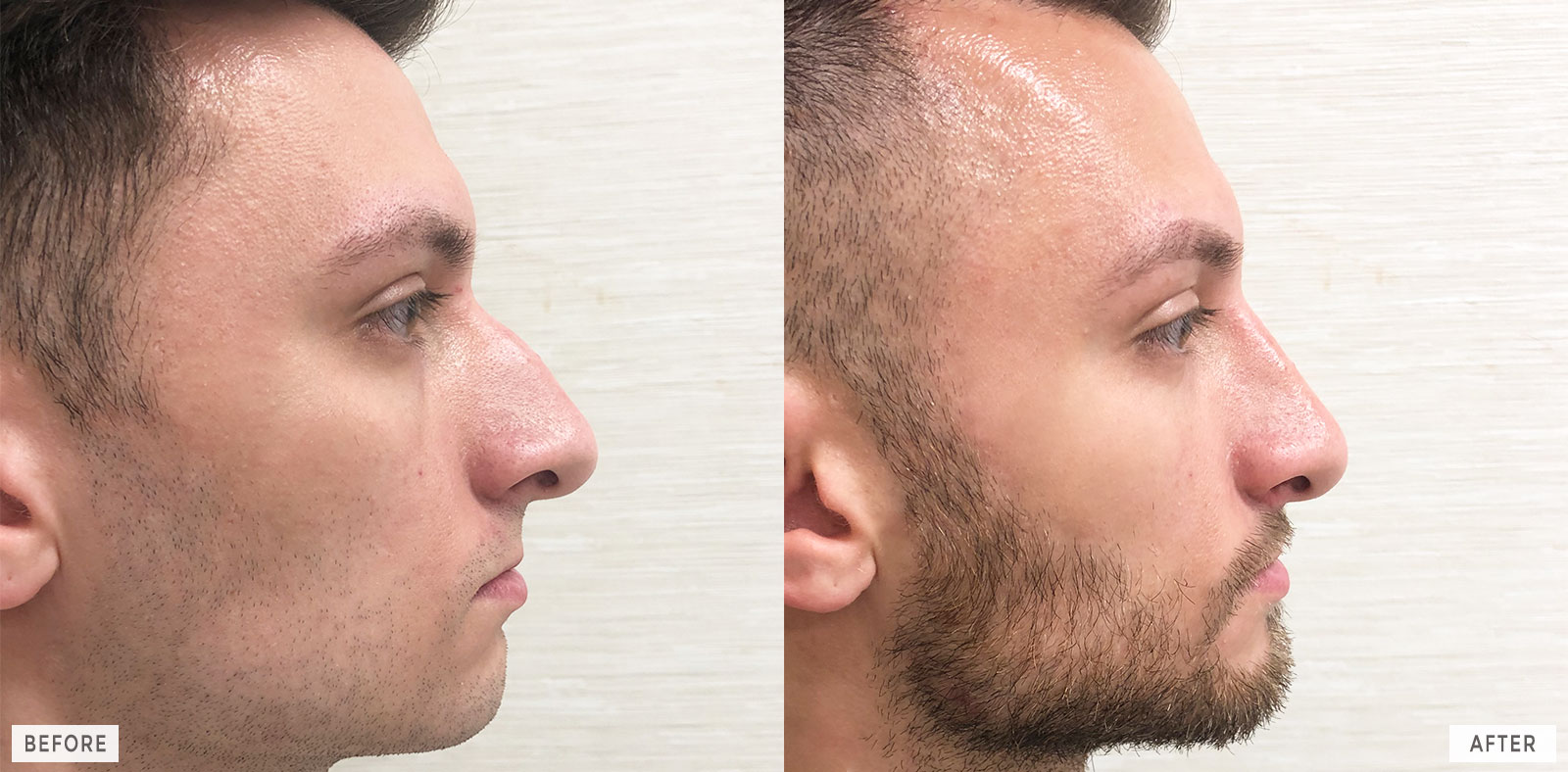 philadelphia-cosmetic-rhinoplasty-facelift-before-after_11c