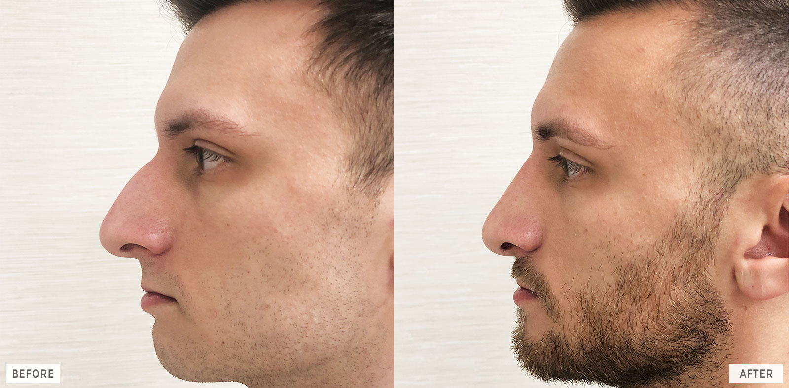 Philadelphia Cosmetic Rhinoplasty Before and After Photos