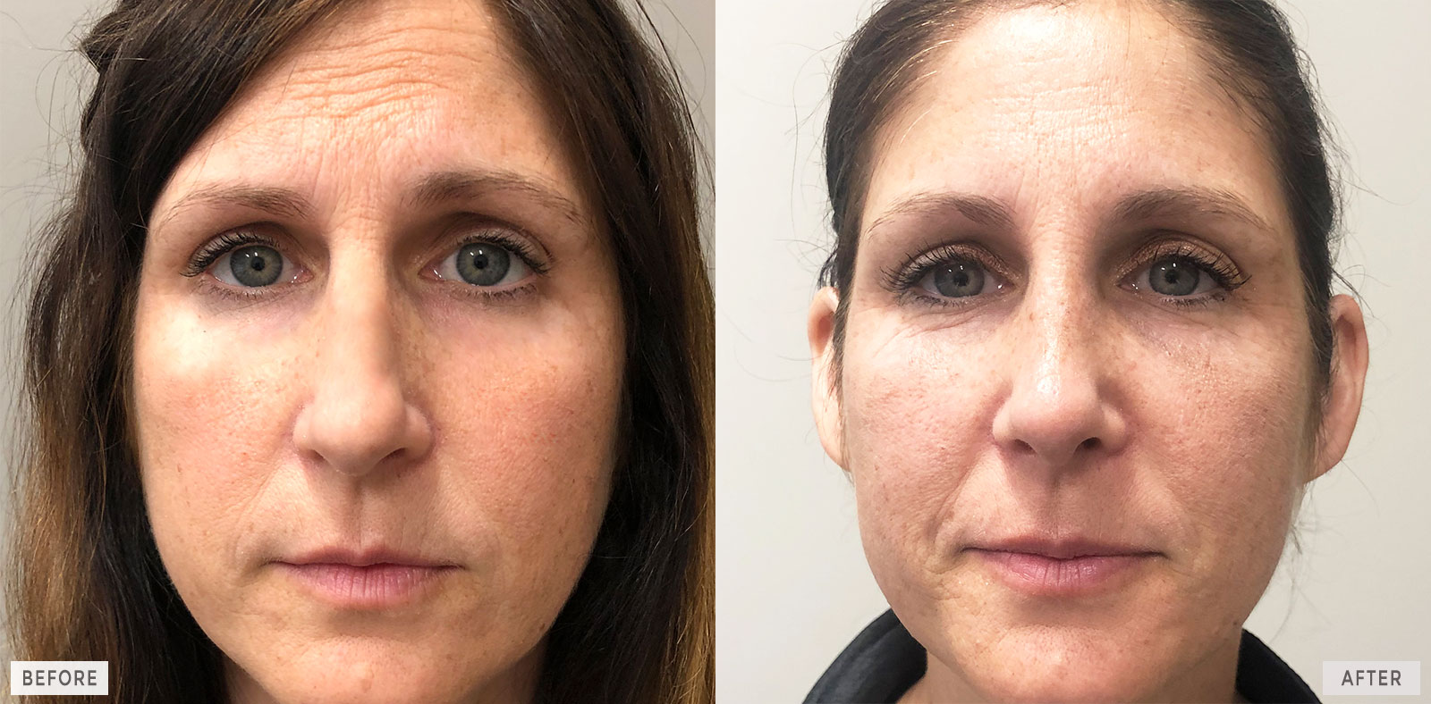 Philadelphia Cosmetic Rhinoplasty Nose Job Before and After Images