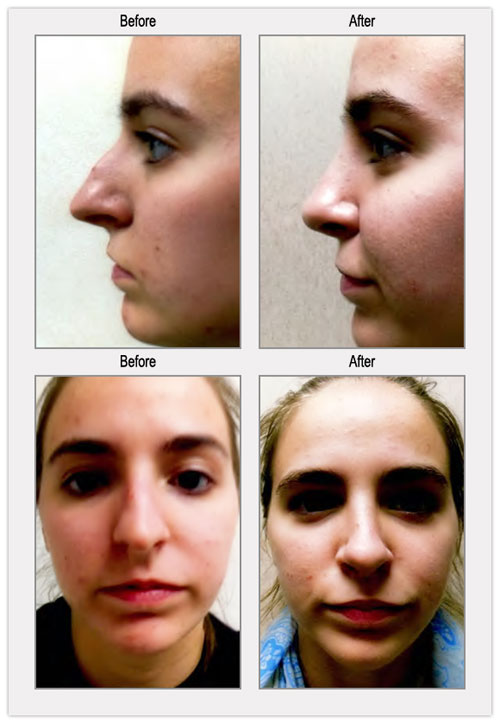 Rhinoplasty Before and After Photos Philadelphia - BergerHenry ENT
