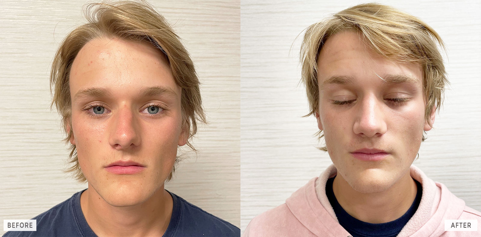 Rhinoplasty Before and After Images - BergerHenry ENT Philadelphia