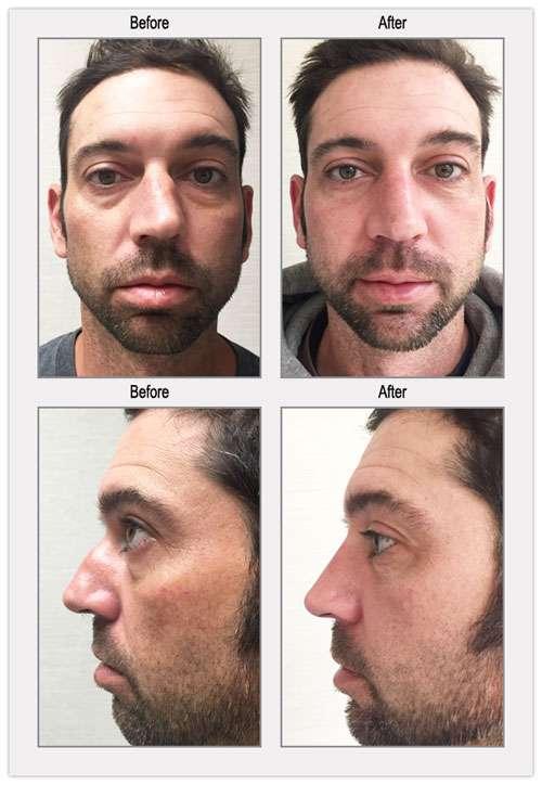 Rhinoplasty Nose Job Before After Photos - BergerHenry ENT Philadelphia