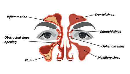 Sinus Illustration