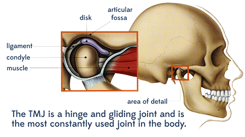 TMJ Illustration - What Causes TMJ