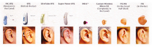Types and sizes of hearing aids